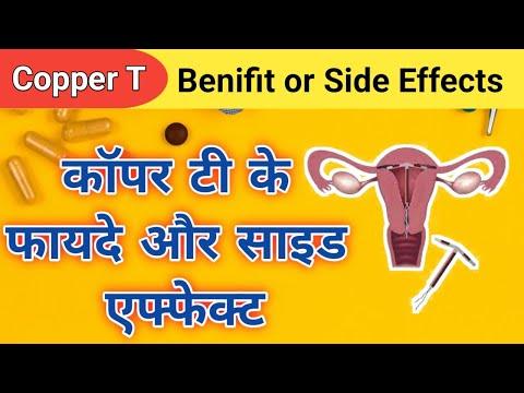 कॉपर-टी-side-effects-of-copper-t-,-birth-control-method,