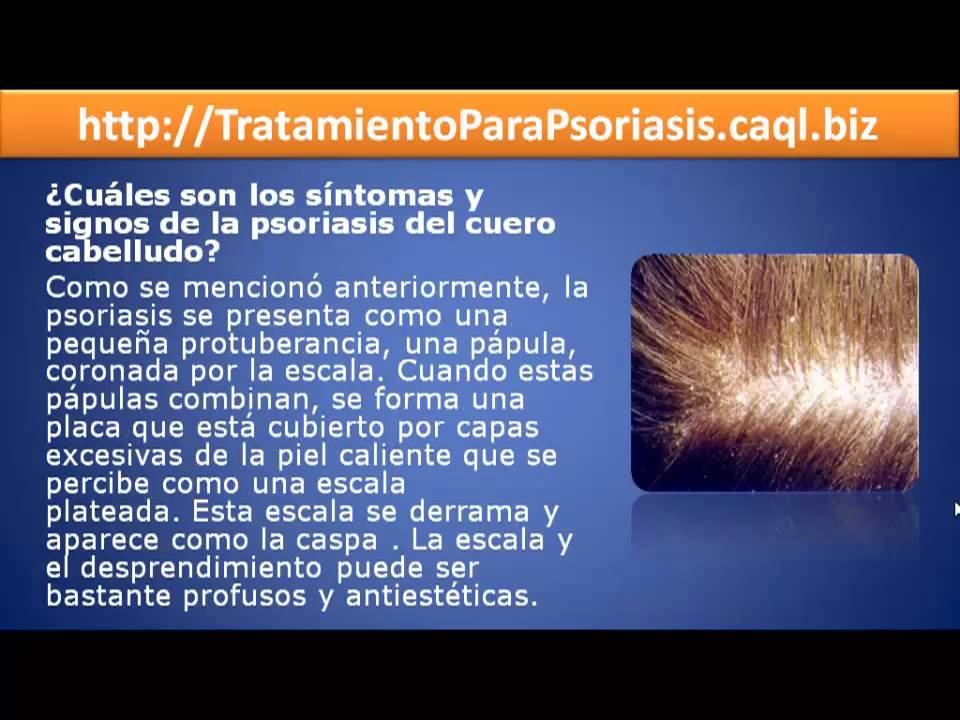 El tratamiento de la psoriasis los modos públicos