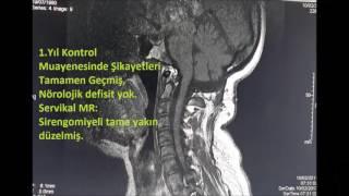 Prof Dr. Hidayet Akdemir'in Beyincik sarkması (Arnold Chiari) Ameliyatı PROF. DR. HİDAYET AKDEMİR