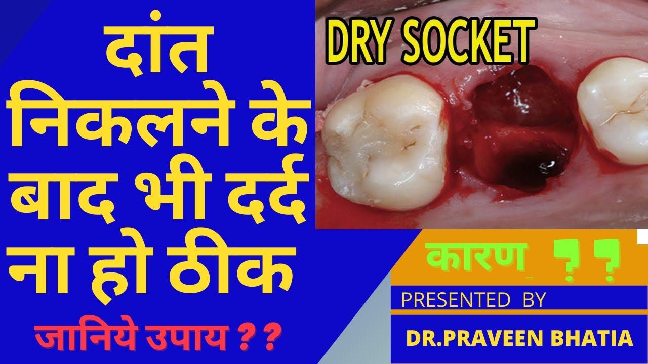 दांत निकलने के बाद भी दर्द ना हो ठीक कारण  ?? जानिये उपाय ?DRY SOCKET-POST EXTRACTION PAIN-DR BHATIA