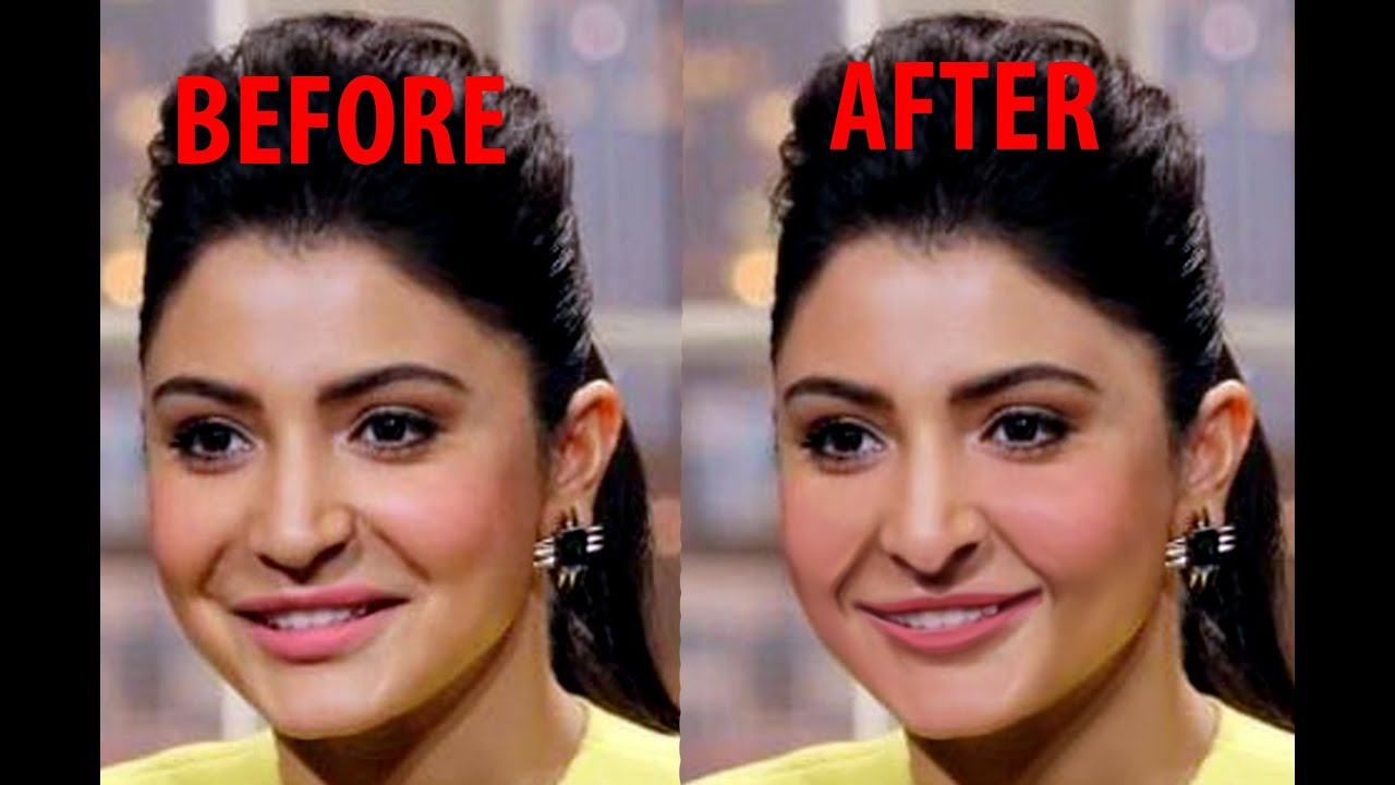 anushka sharma's lips surgery again through photoshop - youtube