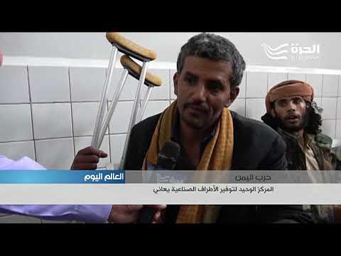 المركز الوحيد للأطراف الصناعية في اليمن مهدد بالاقفال  - 19:20-2017 / 7 / 17