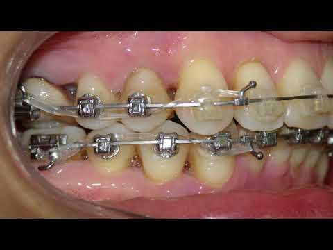 Ортодонтическое лечение у взрослого