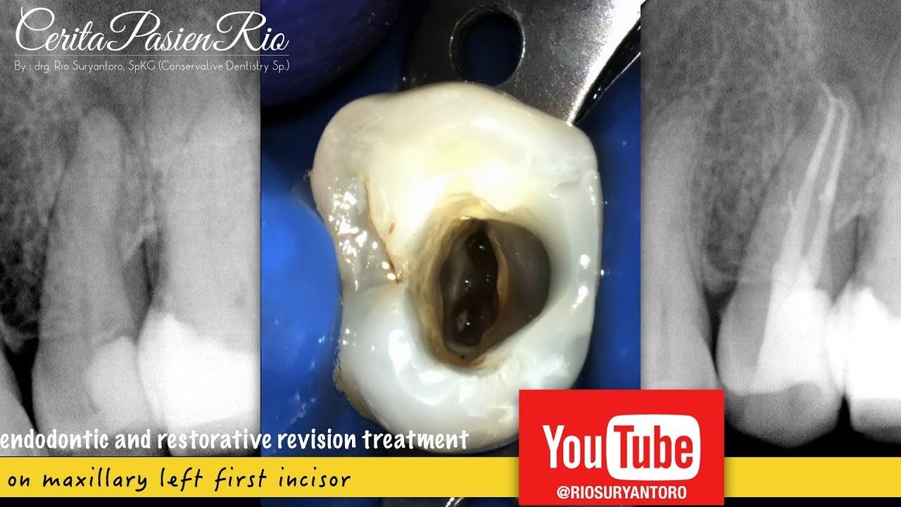 Root Canal Endodontic Treatment On Premolar Perawatan Gigi