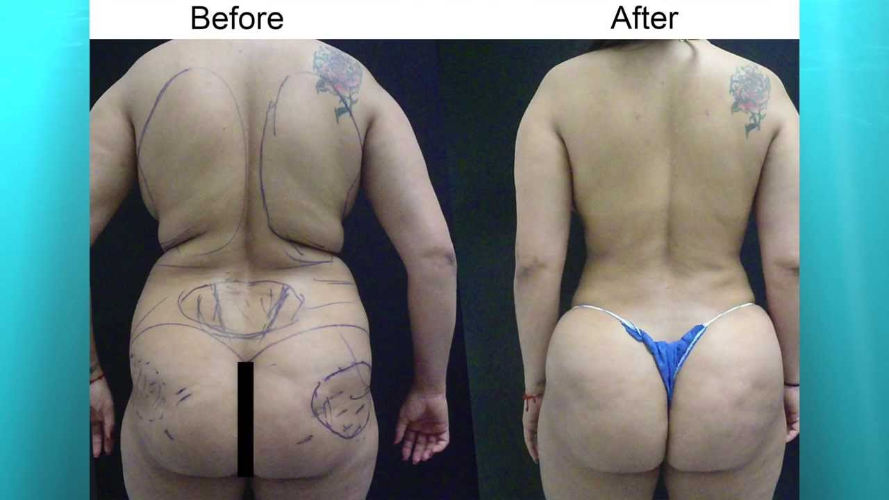 Breast Augmentation Fat Transfer 80
