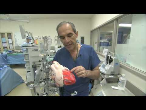 Heart Bypass Surgery Explained Part1