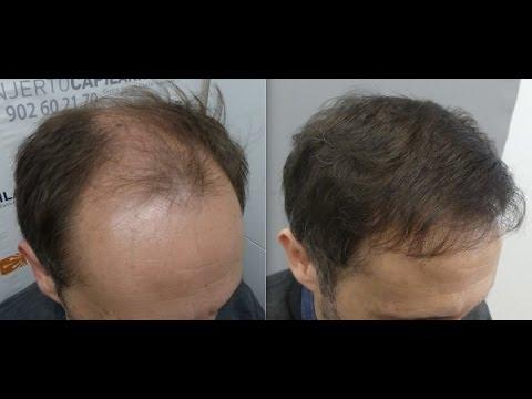 Los medios de la caída de los cabello loreal profesional