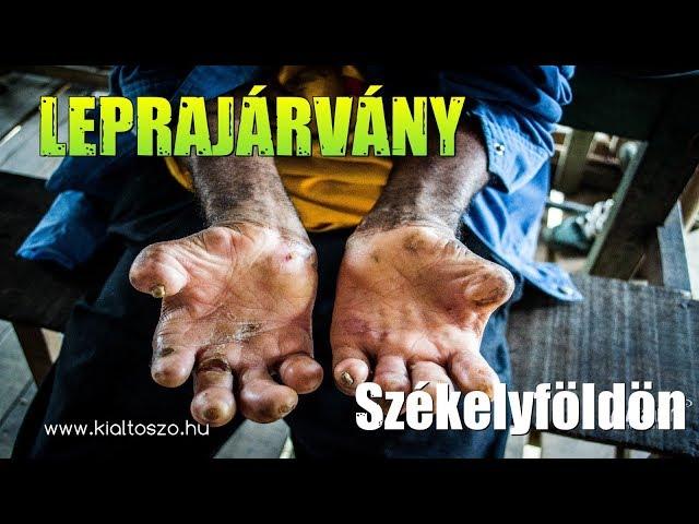Leprajárvány Székelyföldön
