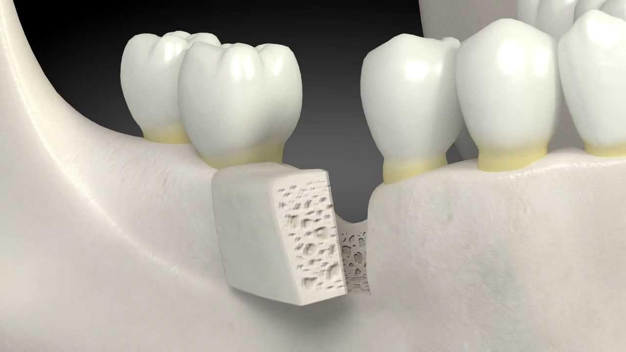 What Is A Dental Bone Graft Youtube