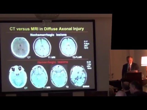Alexander Potapov: Basic and applied aspects of traumatic brain injuries