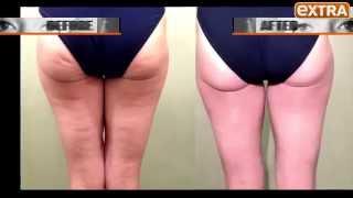 Nurse Jamie On Extra TV: Non-invasive Thermage Body Lift