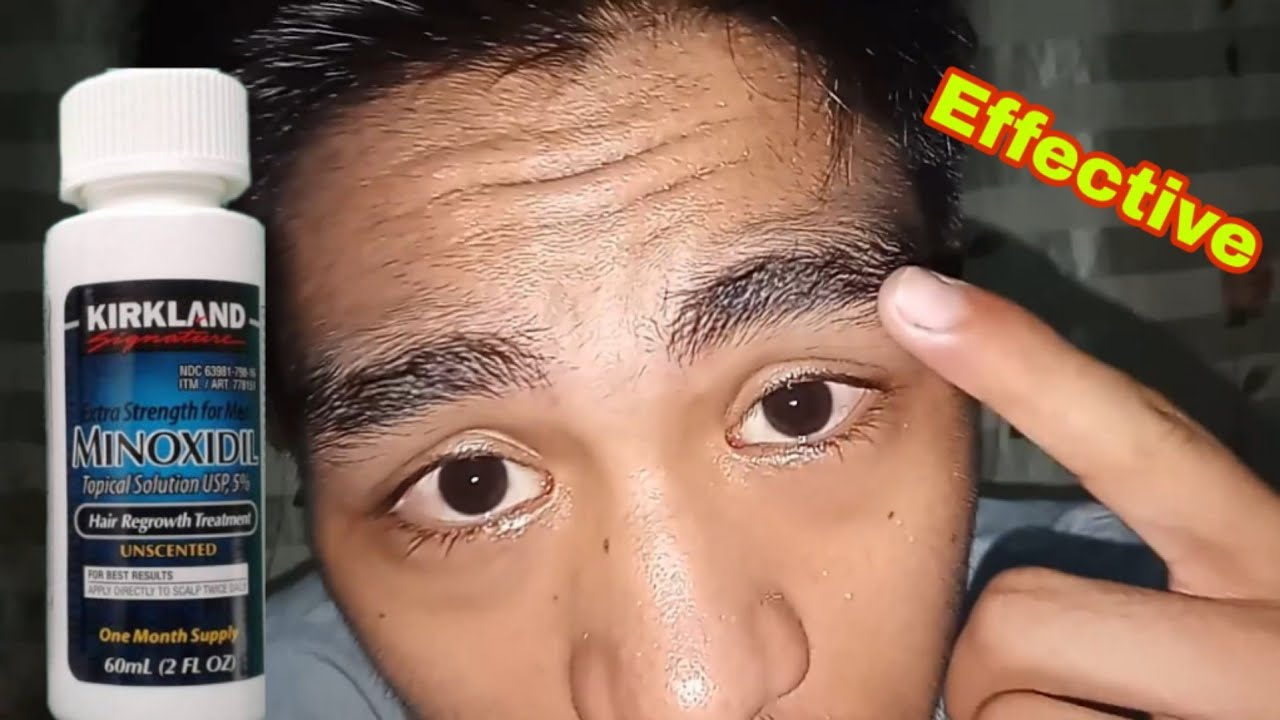 How to growth your eyebrow using minoxidil!! effective ...