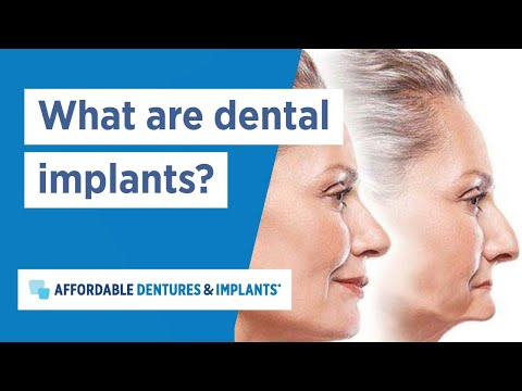 What Are Dental Implants? | Affordable Dentures & Implants