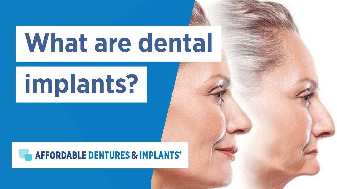 What Are Dental Implants Affordable Dentures Implants Youtube