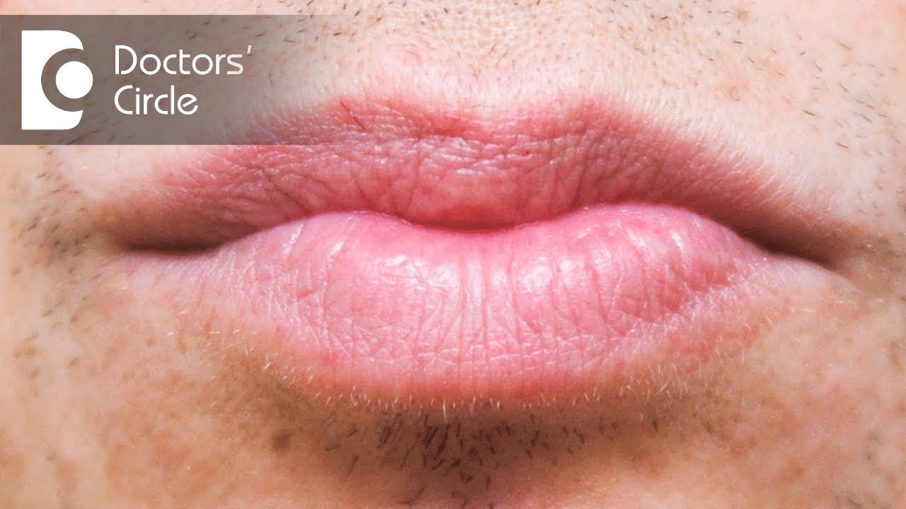 Treatment options for white spots in lips - Dr  Rasya Dixit