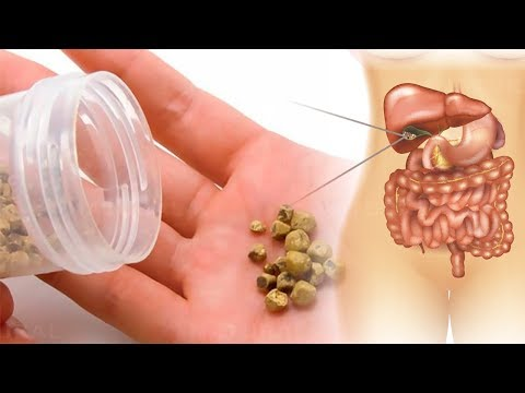 How to Get Rid of Gallstones Naturally