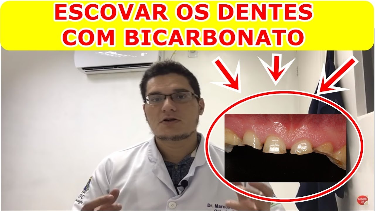 Escovar Os Dentes Com Bicarbonato E Bom Mesmo Youtube