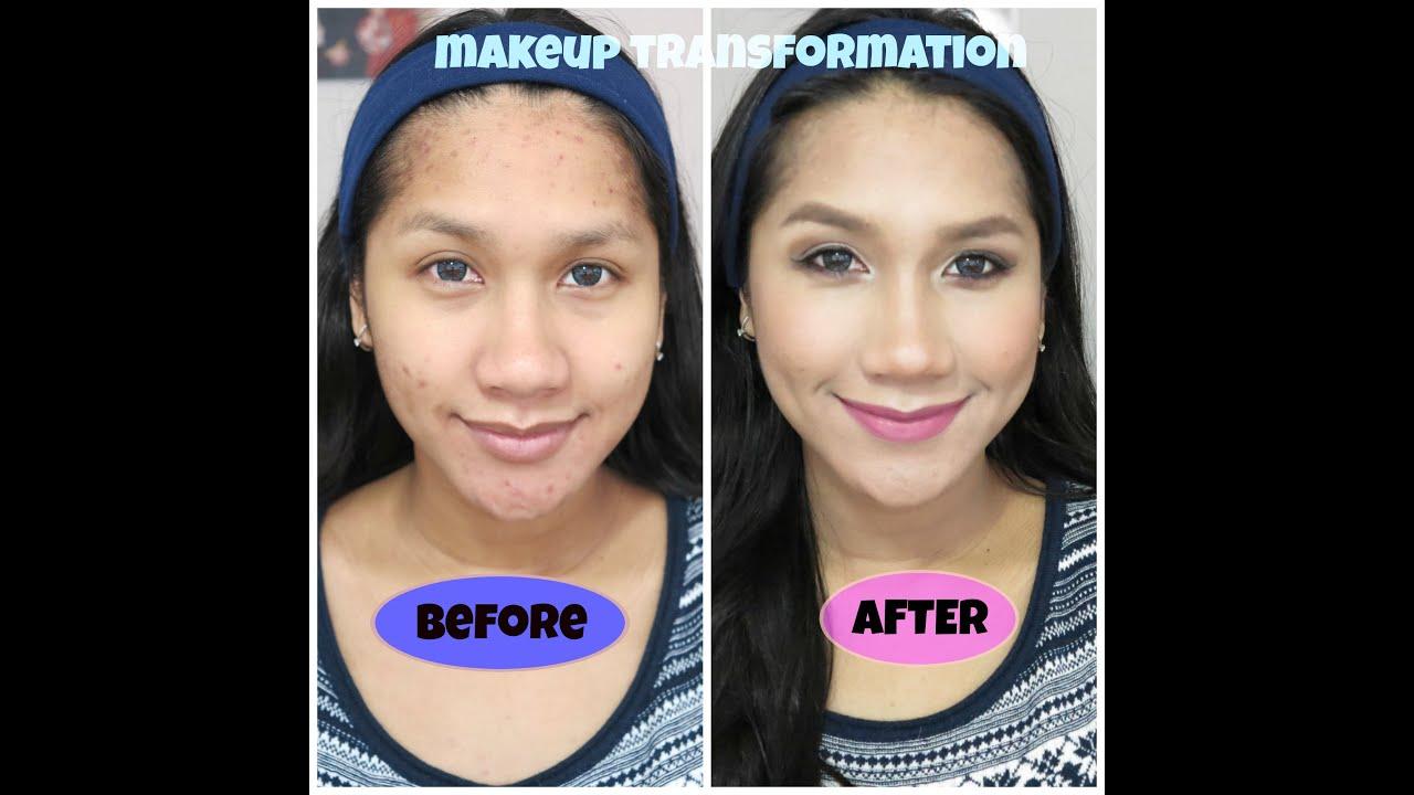 Cara Make Up Menutupi Jerawat Dan Bekasnya