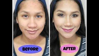 cara makeup menutupi jerawat full acne coverage foundation routine tutorial bahasa indonesia