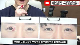 쌍꺼풀 수술 후 삼각형 모양으로 꺾인 눈을 쌍꺼풀 재수…