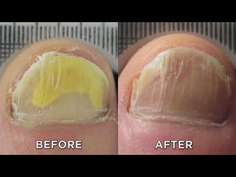 Nail Fungus? Zap It with New Laser Treatment!