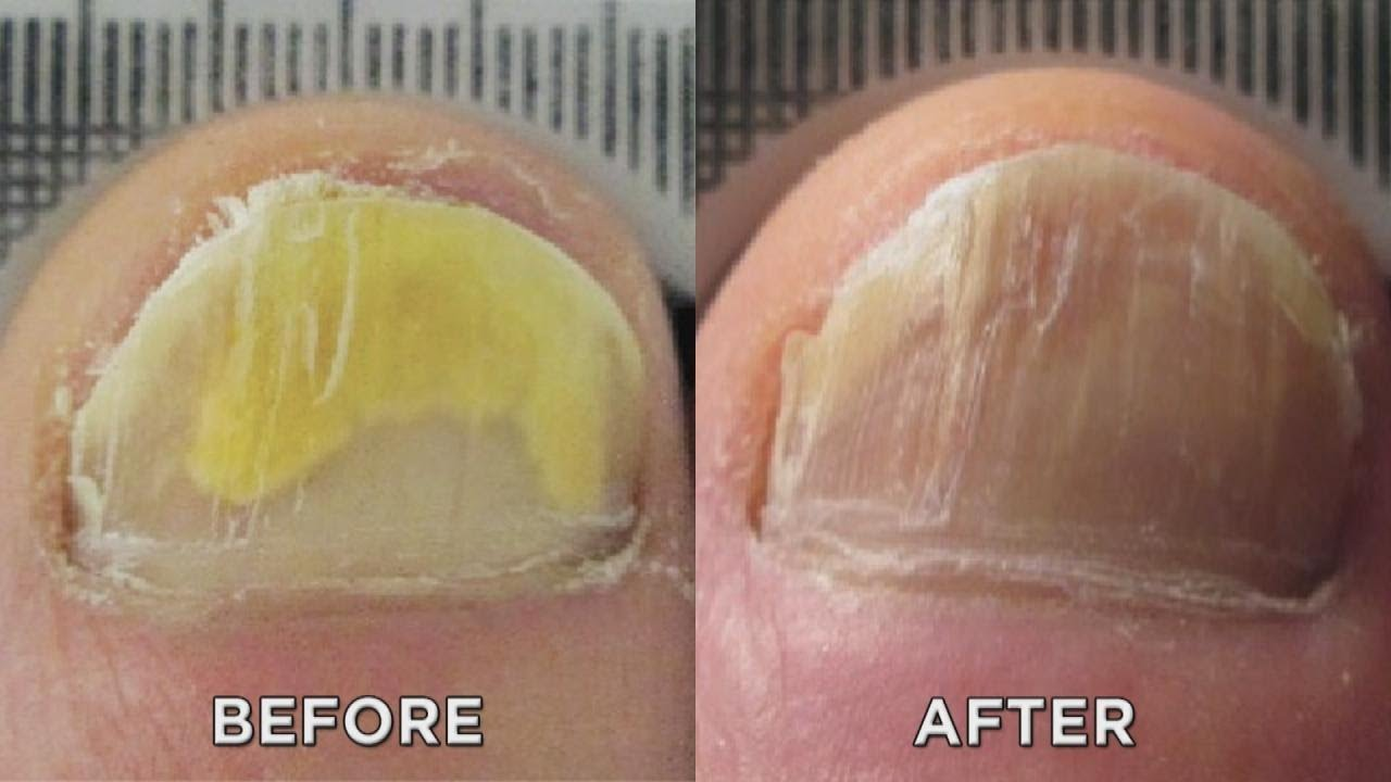 Nail Fungus? Zap It with New Laser Treatment! - YouTube