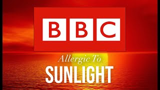 Allergic to sunlight   Living with Xeroderma Pigmentosum [XP]