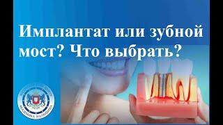 Имплантат или зубной мост? Что выбрать? Имплантация зубов
