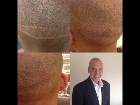 Scalp Micropigmentation 3d style w/ Chris Mr. Natural HeadStrongNY