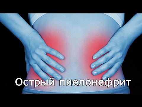 обострение пиелонефрита лечение