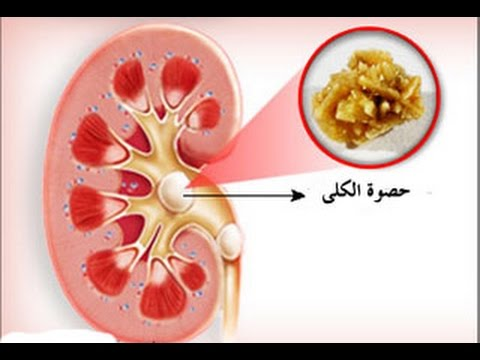 apa style kidney stones - kidney stones the medical term for kidney stones is nephrolithiasis or renal calculi a kidney stone is a solid lump that can be as small as a grain of sand and as large as a golf ball made up of crystals that separate from urine and build up on the inner surfaces of the kidney.