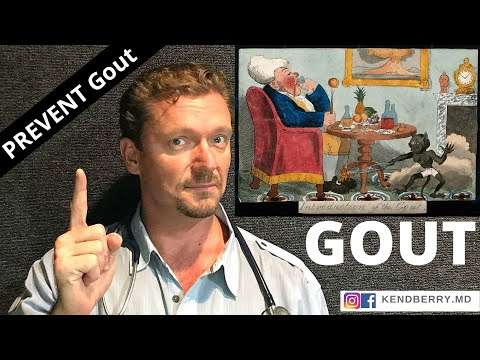 gout-diet:-10-steps-to-optimize-uric-acid-(2019-update)