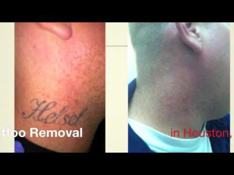 How Much Does Laser Tattoo Removal Cost