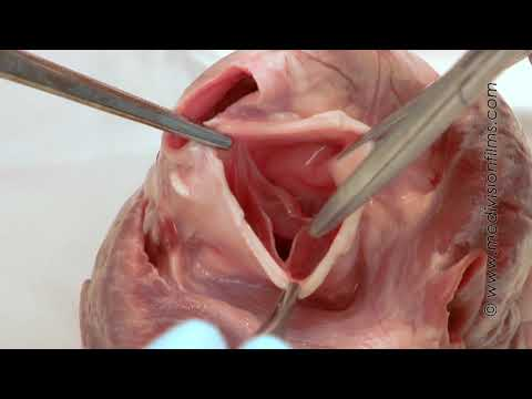 Cardiac Anatomy HD part1