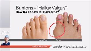 Lapiplasty Educational Webinar