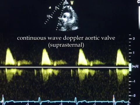 Continuous-wave Doppler
