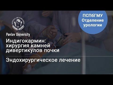 Индигокармин: хирургия камней дивертикулов почки | Гаджиев Нариман Казиханович, уролог-хирург