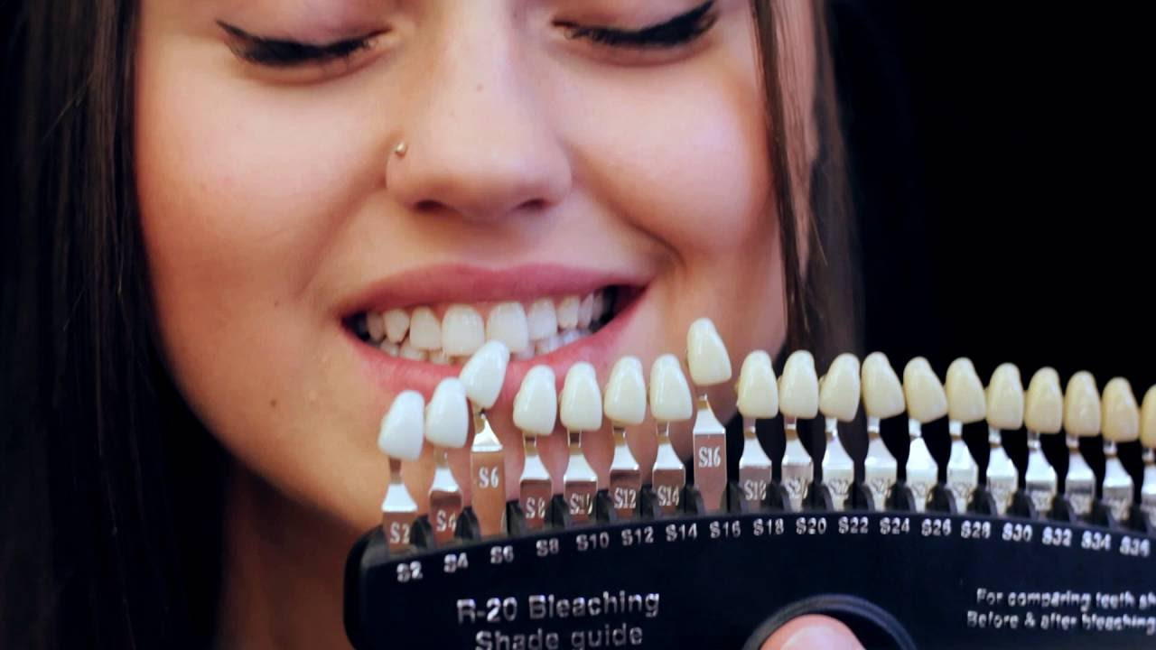 косметическое отбеливание зубов орск