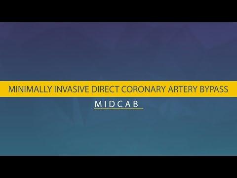 MIDCAB - Minimally Invasive Direct Coronary Artery Bypass