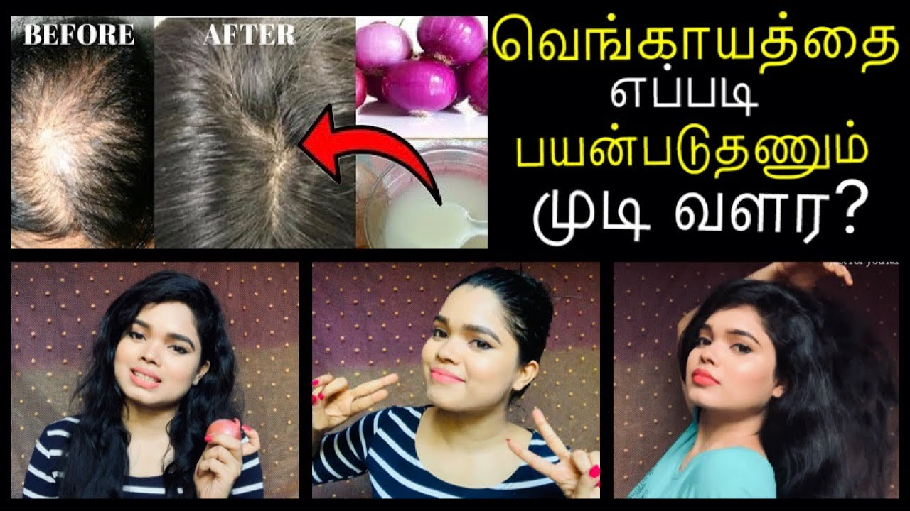 How To Use Onion Juice For Hair Regrowth | Onion Juice For Hair Growth in Tamil | Hair Growth Remedy