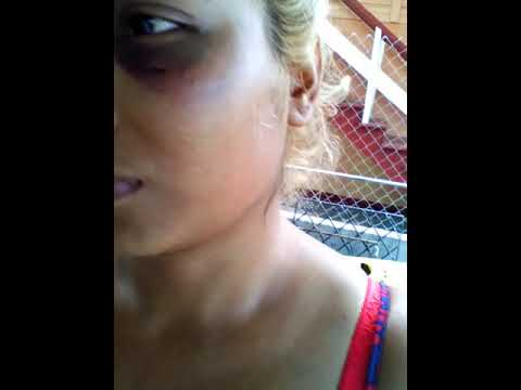 When would Domestic Violence be considered as a criminal act in Guyana?Girl beaten by her brother..
