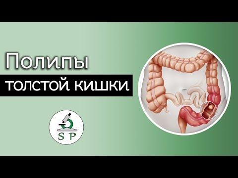 Полипы толстой кишки | Частная патология