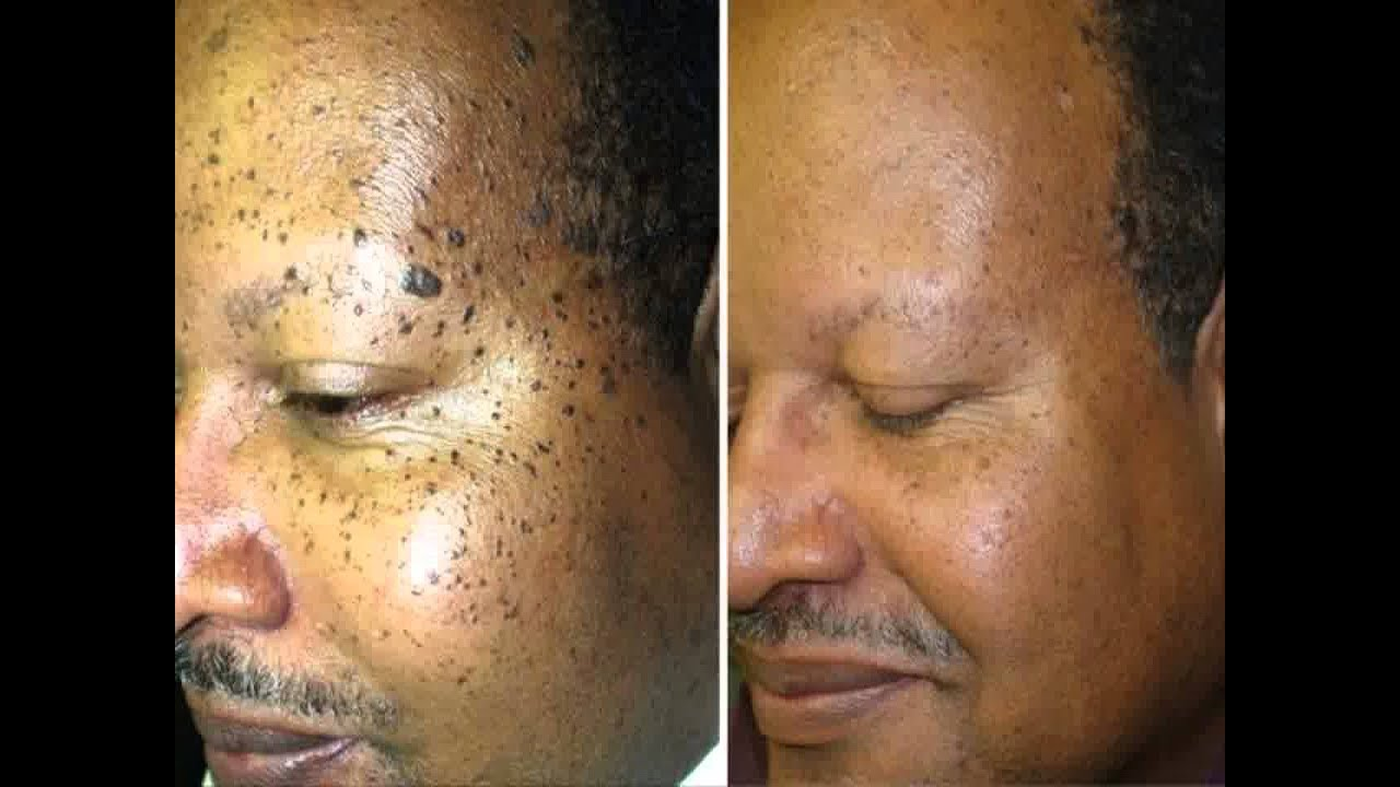 removing facial warts
