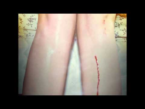 Los Campesinos! - A Heat Rash In The Shape Of The Show Me State Or, Letters From Me To Charlotte