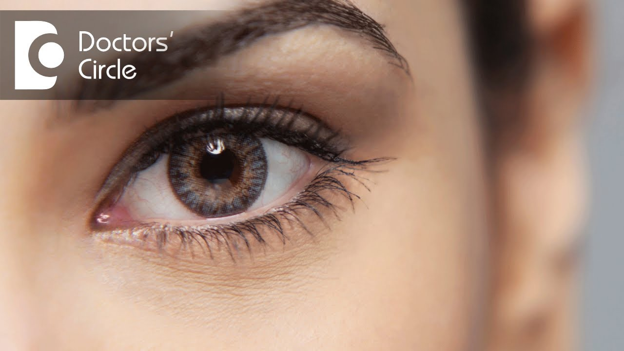 What causes eye floaters & How to manage it? - Dr. Sriram