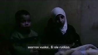Lasten hätä Syyrian Itä-Ghoutassa kasvaa