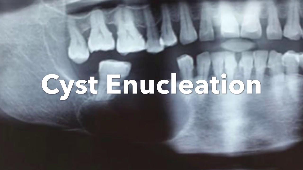 Cyst Enucleation Under LA