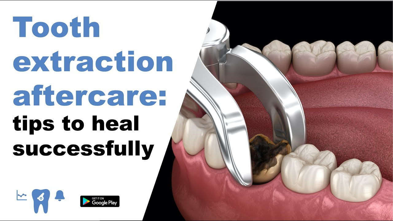 Healthy Tooth Extraction