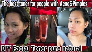 The Amazing Benefits of Rose water Toner On Our Skin and howtomakeit|Paano Gumawa ng natural toner