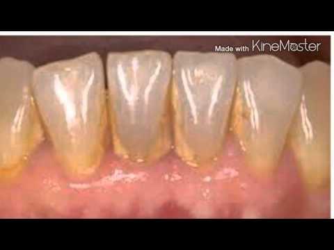 El tratamiento de la uña encarnada de la casa del vídeo